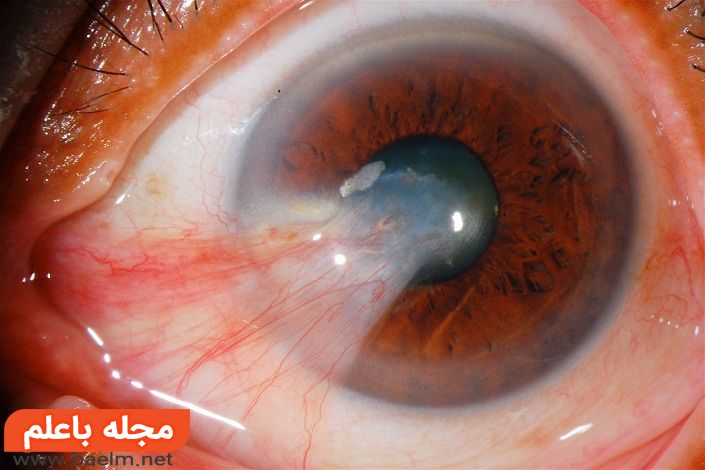 علت و دلایل بیماری ناخنک چشم و پیشگیری و درمان بیماری ناخنک چشم