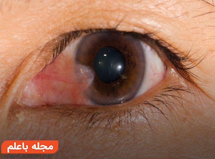 ناخنک چشم چیست,علائم ناخنک چشم,درمان ناخنک چشم چیست