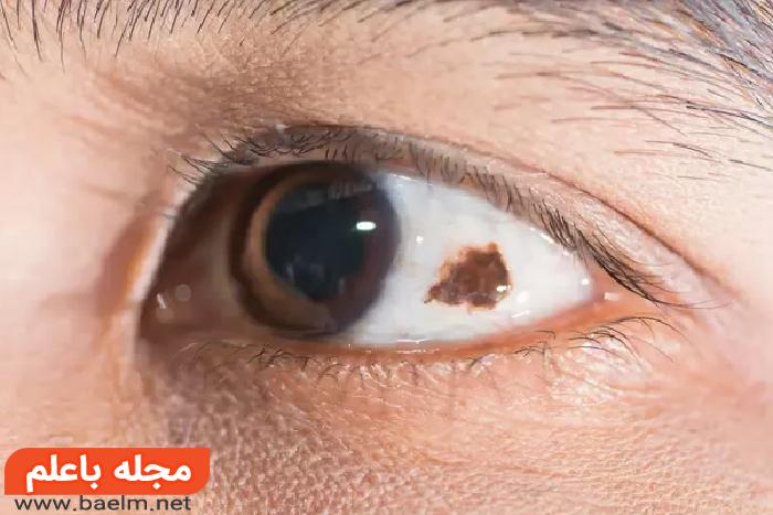 تشخیص سرطان چشم,علت سرطان چشم,عکس سرطان چشم در کودکان,درمان سرطان چشم