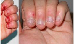 علت اصلی جویدن ناخن درمان ناخن خوردن در کودکان پیشگیری و عوارض خوردن ناخن