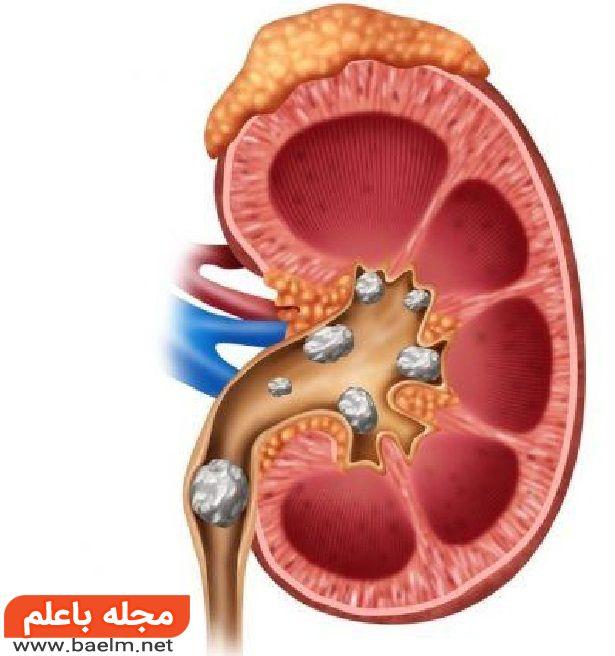 راه های دفع سنگ کلیه, درمان سنگ کلیه در طب سنتی,علت ایجاد سنگ کلیه