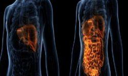 درمان بیماری های کبد + علائم + تشخیص و پیشگیری کبد چرب