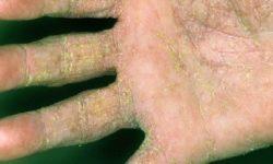 """""""درمان بیماری گال"""" + تشخیص و علائم بیماری گال + علت و پیشگیری"""