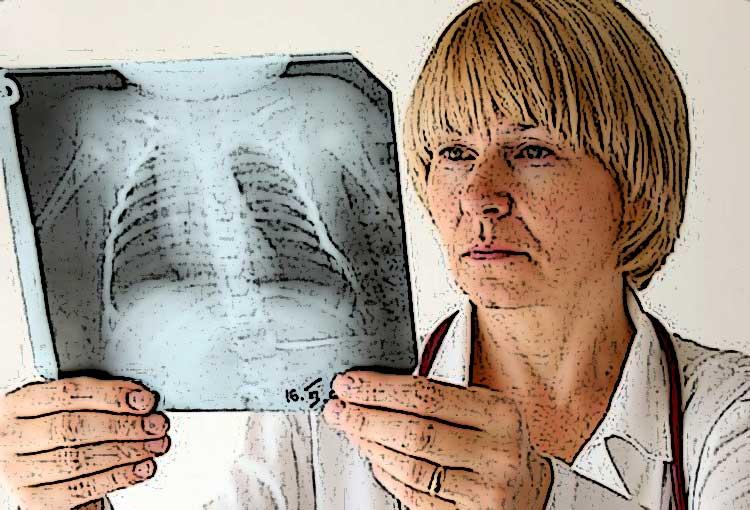 آسم ائوزینوفیل چیست؟ علایم + دلایل و روش های درمان