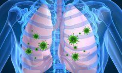 پنومونی ریه چیست و چگونه ایجاد می شود؟