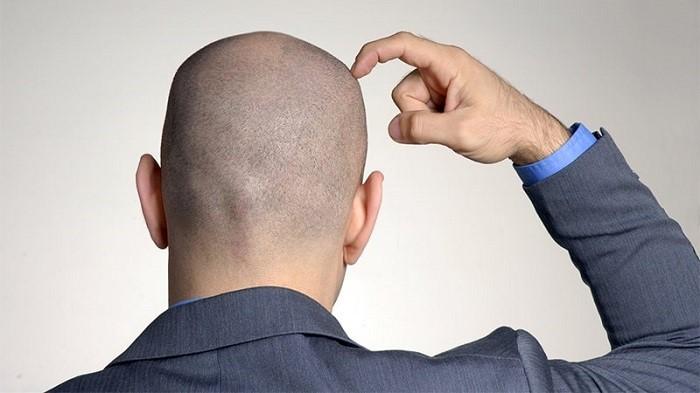 عوارض کاشت مو چیست و چه زمانی رخ میدهد؟