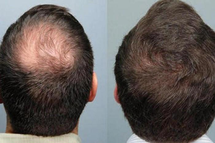 خونریزی بعد از انجام کاشت  یکی از عوارض شایع دیگری که در خصوص کاشت مو