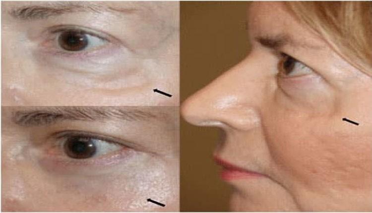 روشهای موقتی در درمان گودی زیر چشم