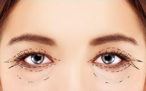 راه حلهای شگفت انگیز برای از بین بردن سیاهی و گودی زیر چشم