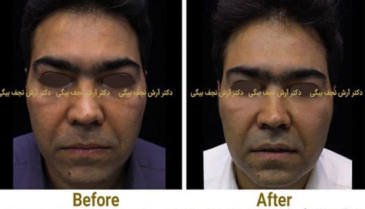 آشنایی با روش تزریق چربی زیر چشم